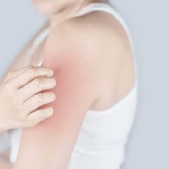 How to Get a Mosquito Bite to Stop Itching